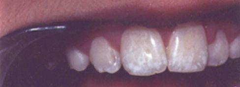 Zahn Fluorose